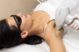 Laser Hair Removal Tampa Bay