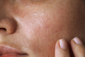 Acne Scarring Healed from Microneedling